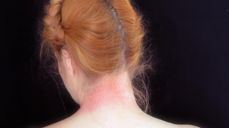 image of woman's neck